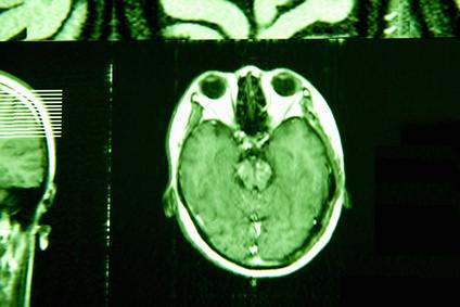 脳を輪切りにした画像