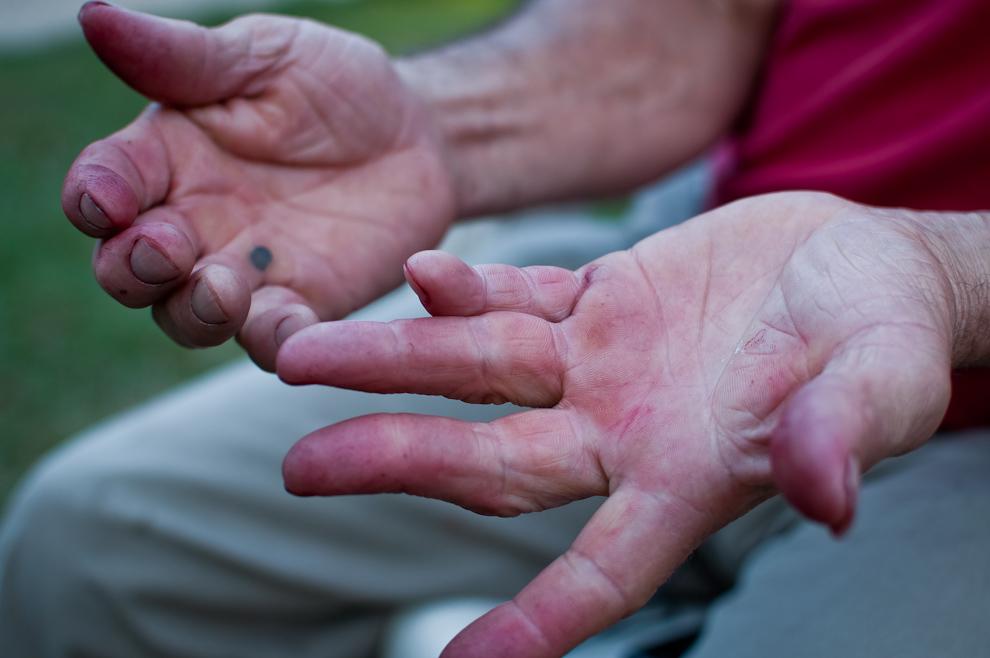 Las manos de un productor de Estanzuela, teñidas con el color de la frutilla, denotan el intenso trabajo y dedicación que pone al negocio. (Elton Núñez)
