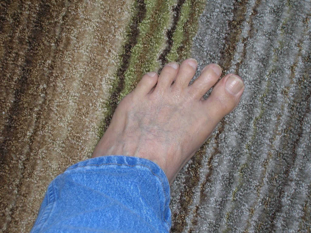 The Worlds Best Photos Of Foot And Vein Flickr Hive Mind