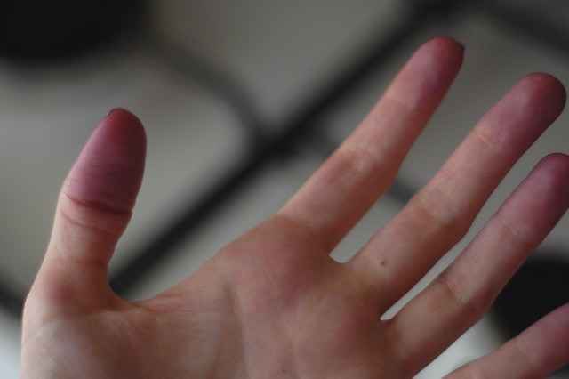 purple fingers