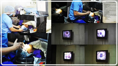 During the lasik surgery