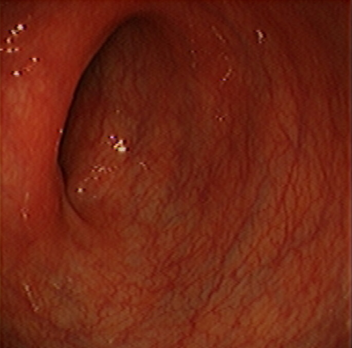 Sigmoid Colon Normal