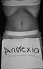 Anorexia's Curse (hunterj02) Tags: girl skinny eating small ribs bones anorexia disorder