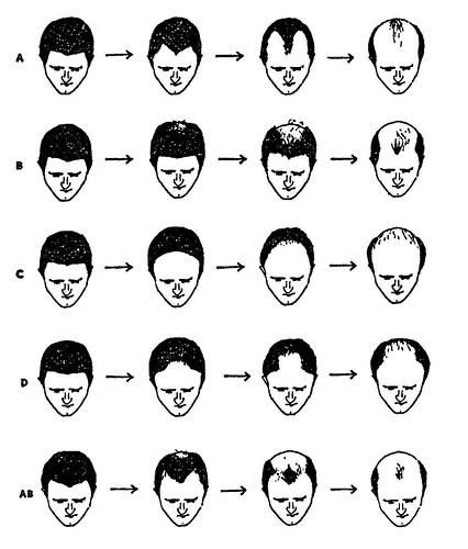 black and white visual description of male pattern balding and hair loss
