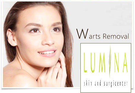 lumina skin surgi center warts 3