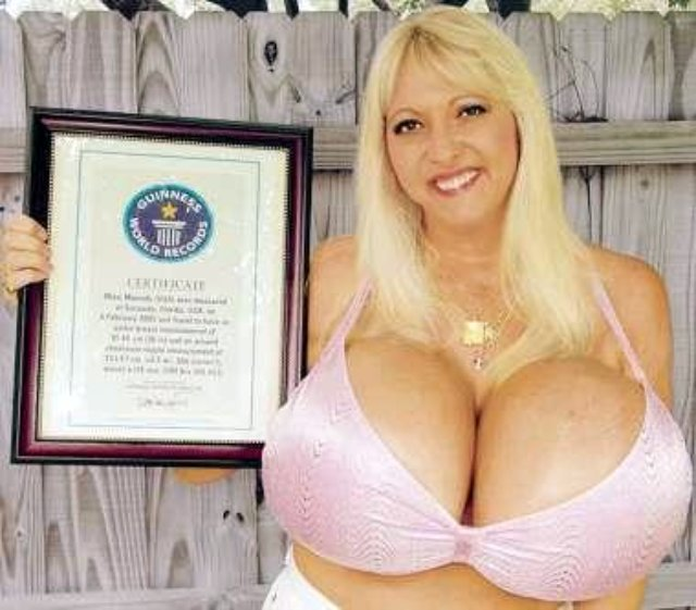 Breast-Implant1