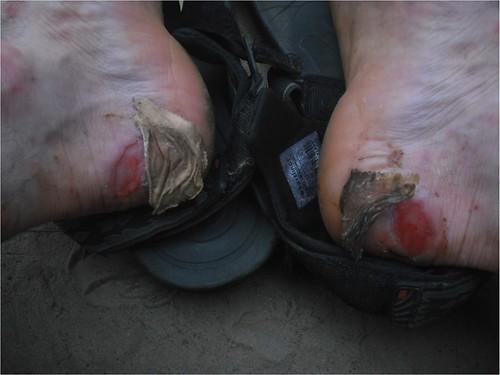 bad heels