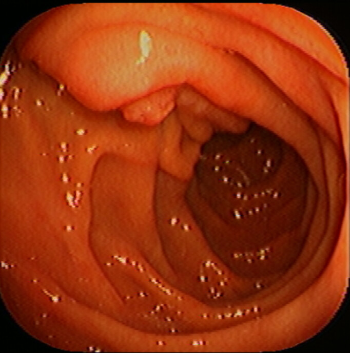 Normal: Duodenum