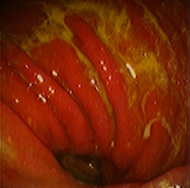was bedeutet akute gastritis berlin.jpg