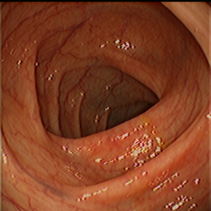 Normal: Splenic Flexure