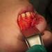 Apicoectomy #10 (FDI #22)