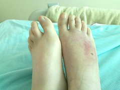 Looking better? (squiggleslash) Tags: foot swollen infected manky infection swelling insectbite cellulitis necrotic