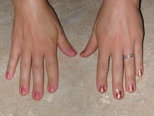 August 21 2011 Ruth nails