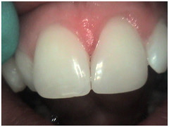 "Correct filling shape - Front tooth - After • <a style=""font-size:0.8em;"" href=""http://www.flickr.com/photos/66815972@N07/6082998973/"" target=""_blank"">View on Flickr</a>"