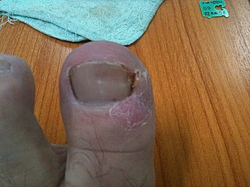 Ingrown Toenail Thailand