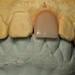 Denture Tooth Waxup