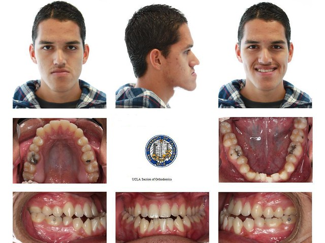 My before/after lefort I and bsso pictures! - Metal Mouth Message Board
