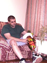 prosthetic9 (ampulove.net) Tags: alex below knee left amputation amputee ampulove