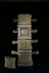 Wirbelsulenmodell (BegehbareOrgane) Tags: weimar kommunikation modular spine ausstellung knochen wirbelsule bandscheibe patienten spinemodel karzinom onkologie begehbareorgane organmodelle erlebbaremedizin knochenmodell wirbelsulenmodell