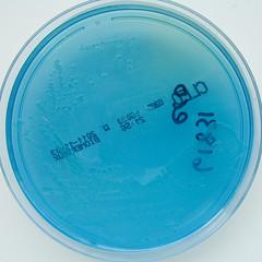 E.coli on C.L.E.D. agar (Nathan Reading) Tags: medical doomsday tem superbug ecoli agar antibiotics uti shv cled coliform escherichiacoli esbl ctxm healthcareassociatedinfection antibioticresistant cystinelactoseelectrolytedeficientagar