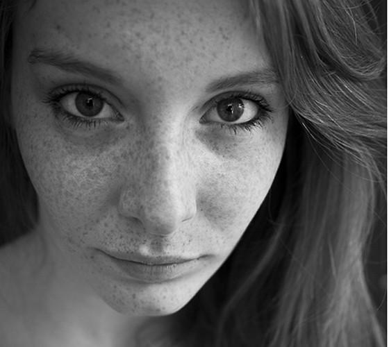 frecklescrop