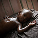 Malnourished Somali Child in Hospital
