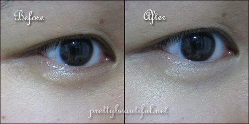Garnier Roll-on Anti dark Circles Before After