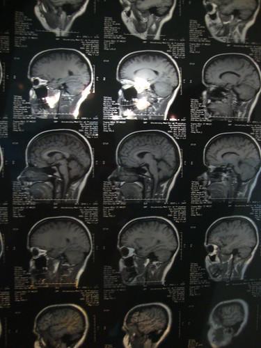 my brain MRI