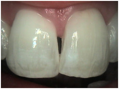 "6 week - Final internal bleaching • <a style=""font-size:0.8em;"" href=""http://www.flickr.com/photos/66815972@N07/6082999467/"" target=""_blank"">View on Flickr</a>"