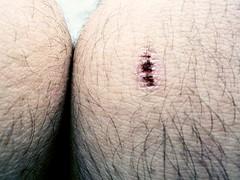 Hurt (,joovitor) Tags: hurt casquinha machucado
