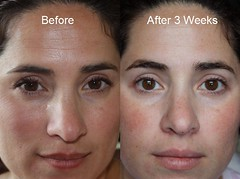 Before and After (Stel La) Tags: magazine that photo dallas texas tx before medical doctor works fields after sterling addison rodan facial guarantee marieclaire clinical proven dayspa pressrelease sterlingdayspa sterlinghealthcenter acupunctureskinroller