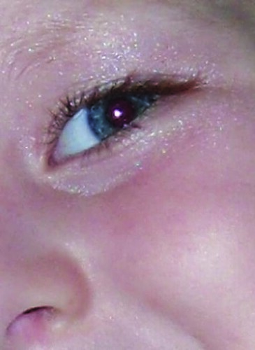 cousin's eye photo