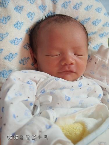出生第十天1