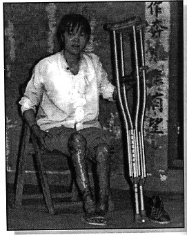 Chen Yuying was 18 and had been working for 3 years, when she suffered burns over 60 percent of her body in a fire at the toy factory where she worked. (China Labor Bulleting)