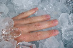 injury on ice (EZ Law) Tags: lexisnexis simoncowell cryogenics cryonics estateplanning