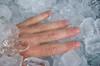 injury on ice (EZ Law) Tags: lexisnexis simoncowell cryogenics cryonics estateplanning
