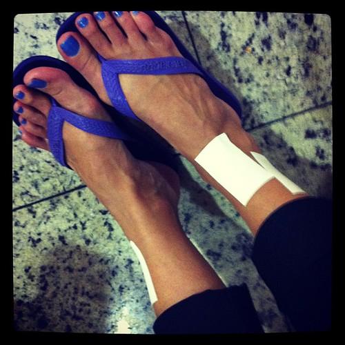 Esse é o tornozelo de uma pessoa estrupiada. Quero minha cama!