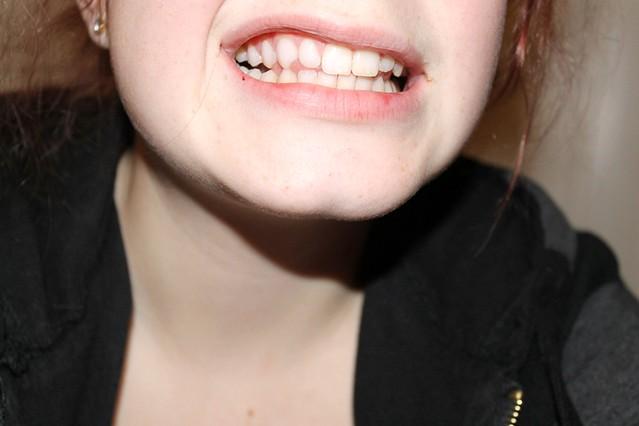 hammashymy