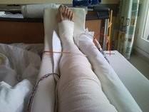 schmerzen hinter knie