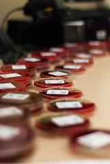Plates (Micro Seth) Tags: nikon culture plate urine bacteria microbiology agar d80 sheepblood