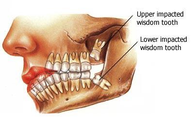 wisdom-teeth-01-en-tm