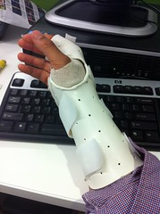 Removable splint